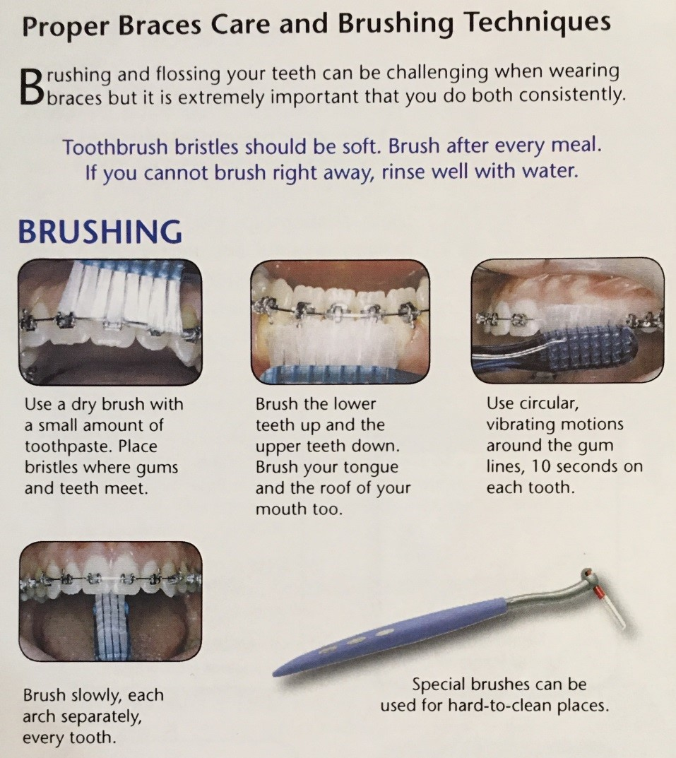 Brushing and Flossing with Braces | Central Orthodontics